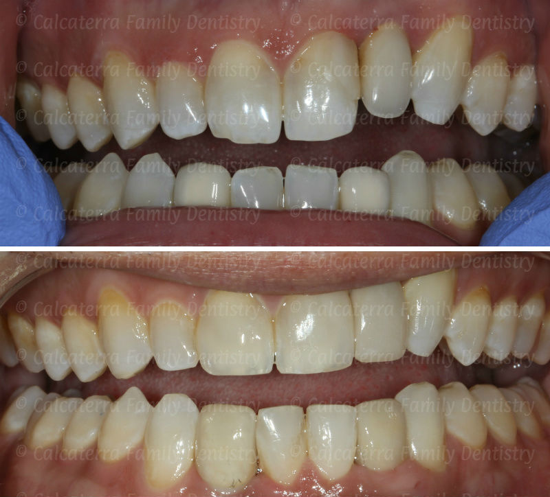 Before and after photos of implant crowns and esthetic recontouring of teeth.