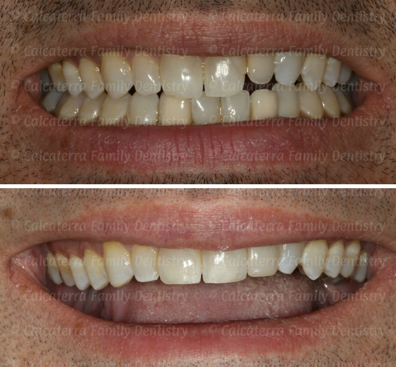 Before and after smiling teeth photos