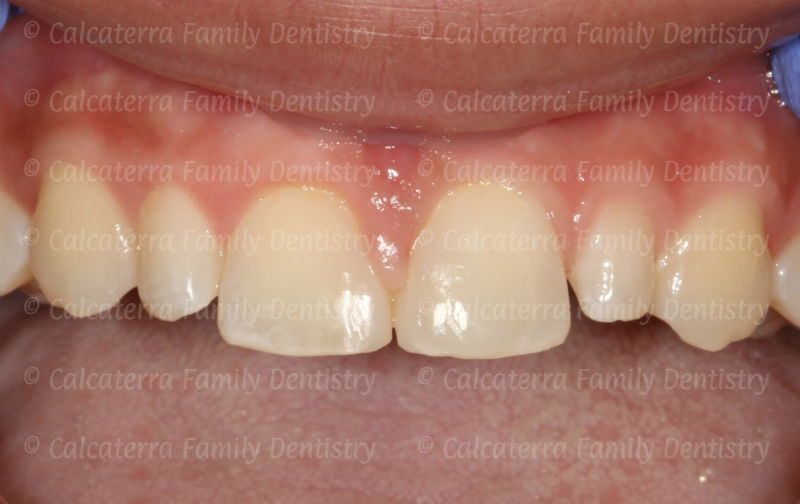 photo showing diastema closure with bonding.