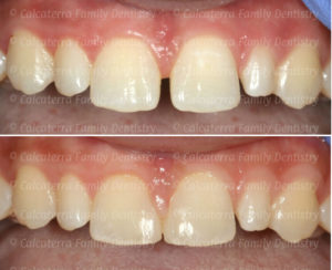 closing a diastema before and after photos.