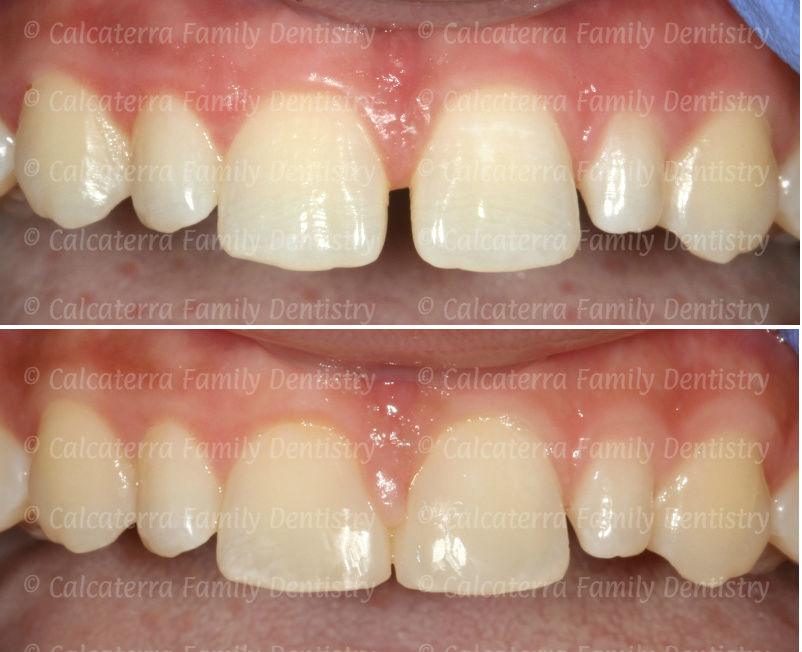 Before and after photos closing a diastema