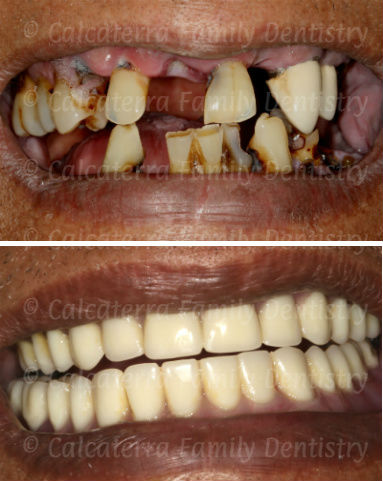 full mouth extraction of bad teeth to new dentures