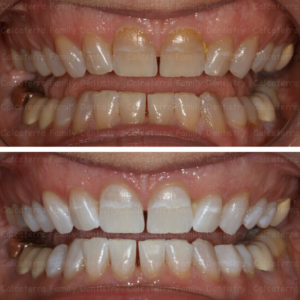 Kor Whitening before and after done in Orange CT