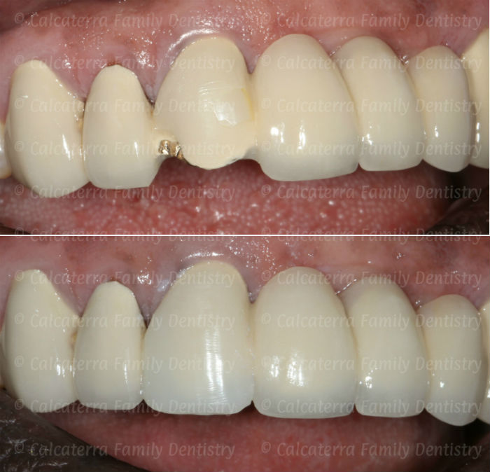 Before and after photo porcelain fracture repair of front dental bridge