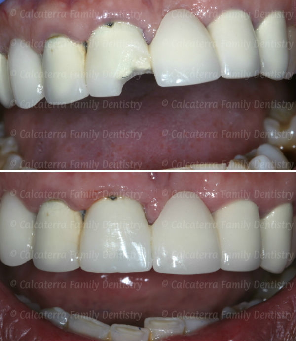 Before and After photo showing porcelain repair of a chipped dental bridge